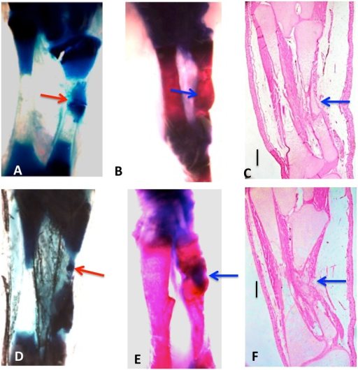Whole mounts of control 10% (A, B, C) and 20% defects (D, E, F) stained with methylene blue (A, D) or methylene blue/alizarin red (B, E), and H & E-stained sections(C, F), three months post-operation.Tibia is on the left and fibula on the right in all photos. Both cartilage and bone (arrows) have regenerated across the defects. Bars in (C, D) equal 400 μm.