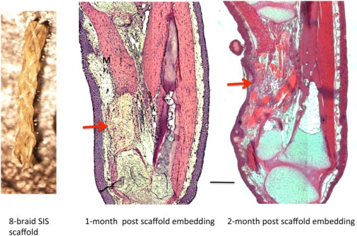 Result of implanting 8-braid SIS scaffold soaked in 0.8 aPBS.Left, 8-braid scaffold prior to hydration. Middle and right, 50% defect at one and two months, respectively, after embedding SIS scaffold alone. No cartilage has regenerated. In the one-month specimen, the implanted scaffold is still visible within the gap (arrow). At two months, the scaffold is largely degraded, and connective tissue and muscle has regenerated into the gap (arrow). M = muscle. Scale bar = 400 μm.