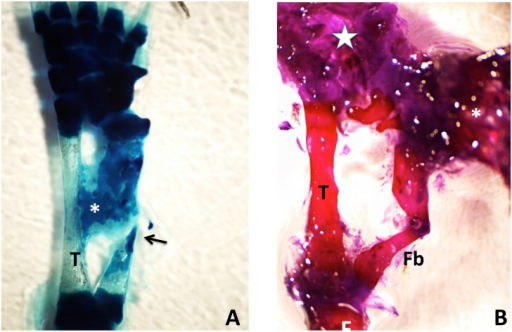 (A) Methylene blue-stained whole mount of a 50% defect three months after treatment with tissue extract.The gap has been completely bridged by an irregular mass of cartilage, which appears to have regenerated primarily from the distal end of the fibula, with only a sliver regenerating from the proximal end (arrow). A cartilage bridge (asterisk), most likely derived from the tibial periosteum, connects the regenerating fibula to the tibia (T). (B) Methylene blue/alizarin red-stained whole mount of a 50% defect three months after treatment with tissue extract. The ends of the fibula were angled with respect to one another so that regeneration from the proximal and distal ends produced a V shape. A supernumerary foot (asterisk) regenerated perpendicular to the fibula. The star indicates the normal foot. Distal is toward the top; proximal is toward the bottom. F = femur; T = tibia; Fb = fibula.
