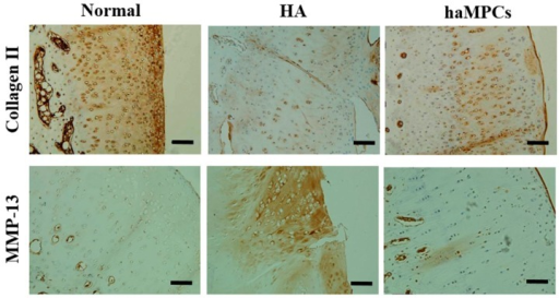 Immunostaining of type II collagen and MMP-13. The haMPC treatment increased articular cartilage type II collagen expression and decreased articular cartilage MMP-13 secretion. Scale bars = 50 μm.