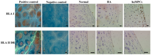 HLA-I but not HLA-II-DR was expressed in haMPC treatment group. In normal and HA treated cartilage, HLA-I and HLA-II-DR were negative. HLA-I but not HLA-II-DR was expressed in haMPC treated cartilage. Immunohistochemical analyses of HLA-I and HLA-II-DR in human tonsil tissue were used as positive control and negative (isotype) control. Scale bars = 50 μm.