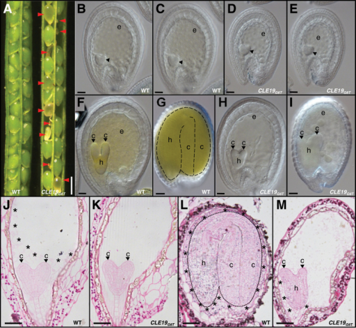 Defective embryo and endosperm development in pCLE19:CLE19G6T:tCLE19 transgenic plants. (A) Siliques from wild-type (WT) and pCLE19:CLE19G6T:tCLE19 transgenic plants (CLE19G6T), showing aborted ovules (indicated by arrowheads) at 12 DAP. (B–I) DIC microscopic observations of cleared ovules from wild-type (B, C, F, G) and pCLE19:CLE19G6T:tCLE19 transgenic plants (D, E, H, I) at 5 (B–E), 7 (F, H), and 12 DAP (G, I). Note the reduced sizes of embryo sacs in (D), and decreased numbers of endosperm nuclei in (E), as compared with (B) and (C), while there is no obvious defect in the embryo (indicated by arrowheads) at this stage. Delayed cotyledon formation (indicated by arrowheads) in embryos from pCLE19:CLE19G6T:tCLE19 transgenic plants at 7 (H) and 12 DAP (I), as compared with wild-type ovules at the same stages (F, G). (J–M) Cytohistological analyses of embryos and endosperms in the wild-type (J, L) and pCLE19:CLE19G6T:tCLE19 transgenic plants (K, M) at 5 (J, K) and 12 DAP (L, M), to show the delayed endosperm cellularization (indicated by asterisks) and defective cotyledon establishment (indicated by arrowheads) in ovules from pCLE19:CLE19G6T:tCLE19 transgenic plants (K, M), as compared with the wild type at the corresponding stages (J, L). c, cotyledon; h, hypocotyl; e, endosperm. Scale bars: in A=500 μm; in B–E=100 μm; in F and H=50 μm; in G and I=100 μm; and in J–M=50 μm.