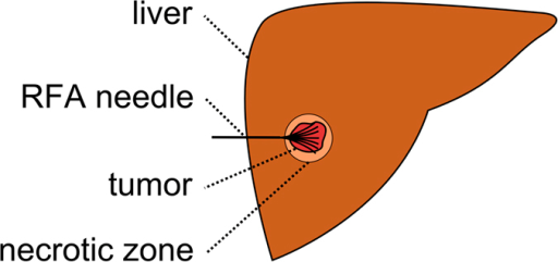 Schematic view of the liver (brown) with a fully expanded and umbrella-shaped radiofrequency ablation (RFA) needle (black).The needle tips are located in a liver tumor (red) surrounded by the so called necrotic zone (light brown).