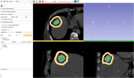GrowCut initialization for the segmentation of the RF ablation zone: the ablated zone is marked in green and the background is marked in yellow on three 2D slices, respectively.