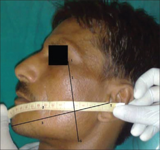 Three facial measurements between five reference points: Mandibular angle (G), tragus (T), lateral canthus of the eye (L), outer corner of the mouth (A) and soft tissue pogonion (P) using a measuring tape