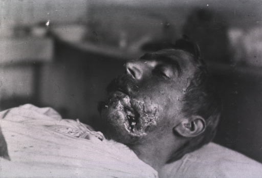 <p>View of a patient's open wound located at his lower left cheek and jaw area.</p>