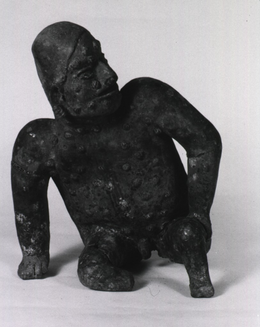 <p>Sculpture:  Seated male figure, leaning on right arm; body covered with skin lesions.</p>