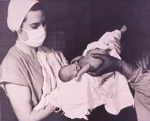 <p>Newborn infant is being handed to a nurse.</p>
