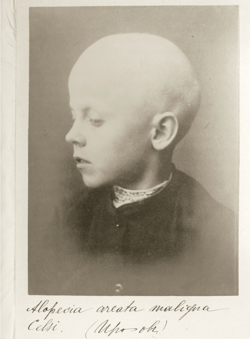 <p>Photograph of a nine-year-old boy suffering from &quot;malignant baldness,&quot; alopecia areata. Clinical Collection 1 [1890], facing p. 52.</p>