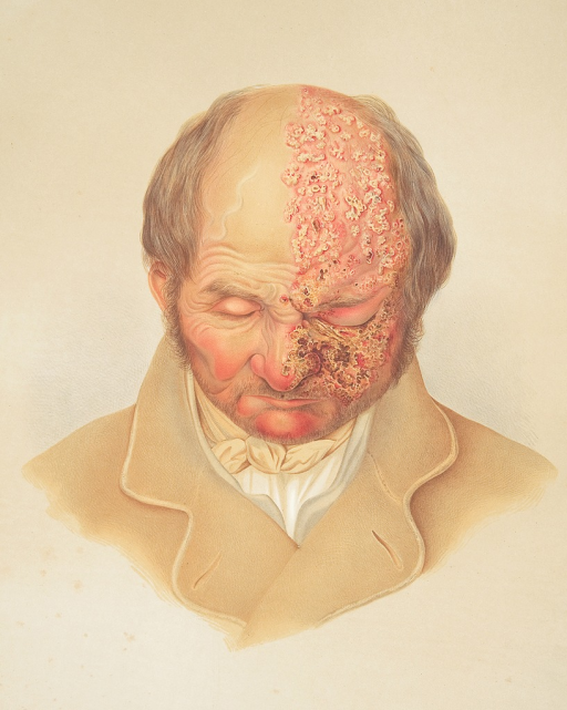 <p>Image of a lithograph from Hebra's Atlas, pt. 6, pl. 7, showing a bald man, his head slightly bent down, with herpes zoster (shingles) on face and pate.</p>