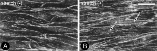 Rhodamine-phalloidin staining in non-stretch-stressed (A) and stretch-stressed (B) ECs from the common iliac artery of rat. The ECs formed many long SFs (arrows) in response to application of mechanical stretch stress at 30% amplitude for 1 hr. Images A and B are shown at the same magnification; bar=20 µm.
