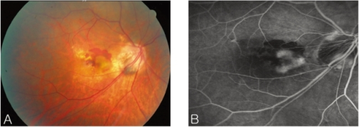 (A) Fundus photography of the right eye before treatment demonstrates a juxtafoveal grayish subretinal membrane with subretinal fluid and hemorrhage. (B) Late phase of the fluorescein angiography shows diffuse leakage from a juxtafoveal choroidal neovascularization.