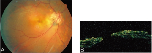 (A) Fundus photography 5 weeks after initial combined treatment of PDT and intravitreal bevacizumab, and 1 week after the second intravitreal bevacizumab injection; demonstrating serous retinal detachment of the posterior pole with a macular hole. (B) OCT confirms the presence of a macular hole.