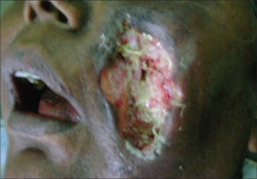 Ulcer on the face caused by Saksenaea vasiformis