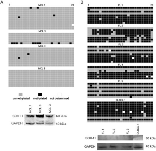 SOX11 DNA methylation and protein expression in primary lymphoma samples. Methylation patterns of SOX11 promoter in clinical specimens was determined by bisulfite sequencing of individual alleles and correlated to SOX11 protein expression. Every row represents a unique allele and the columns represent a potentially methylated CpG site. a) In MCL samples, the promoter stays unmethylated and SOX11 is detectable. b) The lack of SOX11 protein in FL and DLBCL is accompanied by 50-100% methylated alleles.