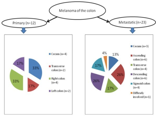 Comparison of anatomic distribution in primary and metastatic melanoma of colon.