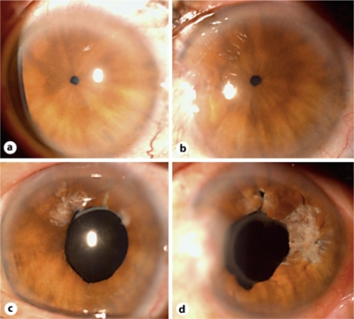 Patient 1 with pupils of less than 2 mm in scotopic illumination, with a hyperpigmented peripupillary area (a right eye; b left eye). After surgery, the pupils were 5 mm in size (c right eye; d left eye).