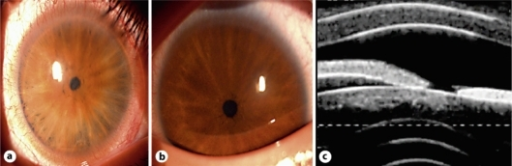 a Right eye of the 41-year-old son (patient 2). b Right eye of the 9-year-old grandson (patient 3). c 50-MHz ultrabiomicroscopy showing iris diameter of less than 1.8 mm and iris thickness of less than 830 μ.