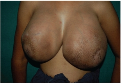 Gross appearance of bilateral breasts tumors.