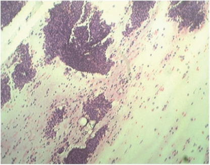 FNAC from breast lumps showed many branching sheets of epithelial cells with many bare nuclei and myxoid stromal fragments in background. (H &E stain X100).