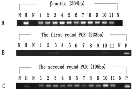 Positive samples for HHV8. A: Amplification of β-actin (304 bp), B: the first round PCR (233 bp), C: the second round PCR (195 bp). Lane N: negative control, Lane H: positive sample of healthy controls, Lane 1-11: positive samples of patients with SLE, Lane P: positive control.