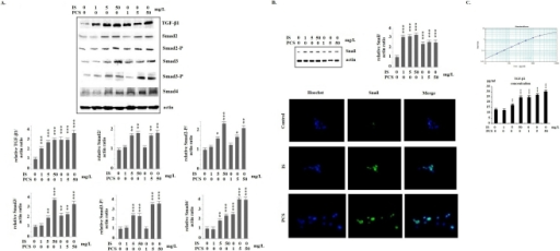 Indoxyl sulfate and p-cresol sulfate activated transforming growth factor-β pathway and increased Snail expression in vitro.A: Results of western blotting show that mouse proximal renal tubular cells (PKSV) cells had significantly increased protein expression of Sma- and Mad-related protein (Smad)2/Smad2-P, Smad3/Smad3-P, and Smad4, when treated with indoxyl sulfate (IS) and p-cresol sulfate (PCS). B: Western blotting and immunostaining for Snail show that PKSV cells had significantly increased nuclolear expression of Snail, when treated with IS and PCS. In the immunostaining study of Snail, PKSV cells were treated with 5 mg/dL IS or PCS for 3 days. C: The transforming growth factor-β1 (TGF-β1) concentrations in the culture medium were measured by ELISA method. PKSV cells treated with IS (5 and 50 mg/L) and PCS (1, 5 and 50 mg/L) had significantly higher TGF-β1 concentration in culture medium than control cells. (600×) (*: P<0.05; **: P<0.01; ***: P<0.001, vs. control).
