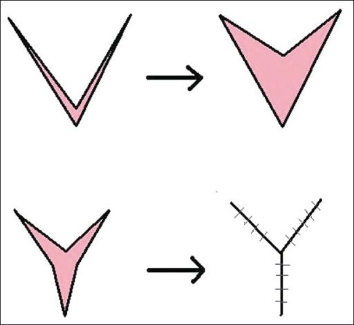 Diagram Representing V U2013y Plasty