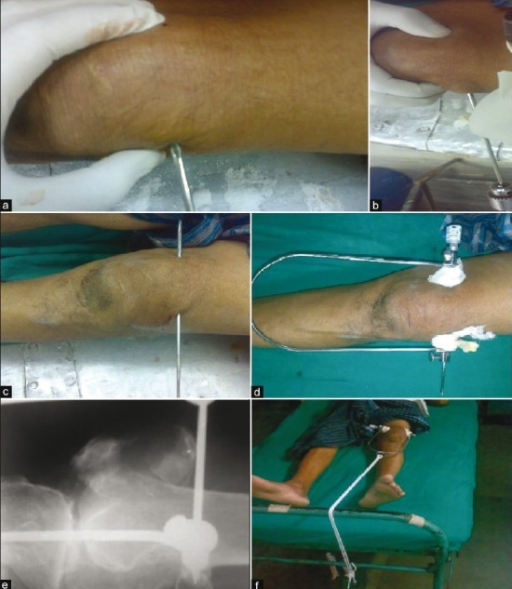 Application of patellar traction: (a) Initial insertion with hand; (b) insertion with drill; (c) after Insertion; (d) with the traction set; (e) X-ray with pin in situ; and (f) on-bed traction
