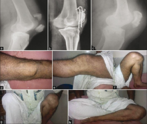 Patellar traction + TBW group (a) Preoperative X-ray shows nonunion of patella (b) postoperative X-rays after TBW and (c) after union with implant removal at followup (d) clinical photograph shows scar (e) extension; (f) flexion; (g) squatting; (h) crossed leg sitting