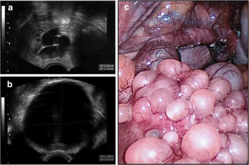 Clinical presentation. Transvaginal ultrasound showed cystic formations in the areas of the right fallopian tube (a) and fundus uteri (b). The maximum diameter of the cysts was 7.5 cm. Laparoscopic presentation of the cystic mass (c); uterus (front) with right tube and right abdominal wall (background).