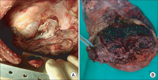 (A) The patient underwent surgical operation of the left upper lobectomy and decortication. (B) There was a 20×12×8-cm-sized mass containing 8×7-cm-sized cavitary lesion with extensive central necrosis.