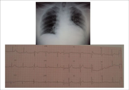 Normal electrocardiogram and chest radiography shows normal heart area withrounded morphology by hypertrophy and dilation of upper left arch resulting fromdilation of ascending aorta
