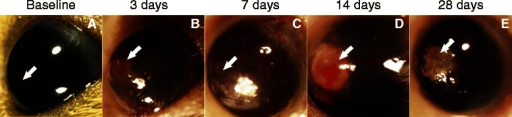 Blast trauma injures the ocular surface. (A) The majority of mice had calcium deposits in the cornea at baseline. Images showing the most common anterior pathologies detected at three, seven, 14, and 28 days post-blast wave exposure. (B) Corneal edema and hyphema at three days post-blast wave exposure. (C) Corneal edema and neovascularization at seven days post-blast wave exposure. (D) A corneal growth with neovascularization and hyphema at 14 days post-blast wave exposure. (E) Corneal scarring and neovascularization at 28 days post-blast wave exposure. Arrows indicate pathologies.