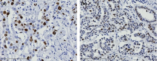 Immunohistochemical examination of Ki-67 (a) and p53 (b) in invasive carcinoma. Representative results of positive staining are shown. Nuclear staining of Ki-67 (a) and p53 (b) can be observed in breast cancer cells.