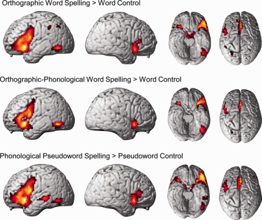 Spelling versus control conditions. Brain regions activated by the orthographic, the orthographic-phonological, or the phonological spelling condition relative to their respective control condition. All comparisons are thresholded at P < 0.001, voxelwise, with an additional cluster extent threshold of P < 0.05, FWE corrected.