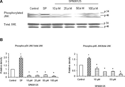 SP600125 decreases phosphorylation of JNK in pancreatic acini. SP600125 (JNK inhibitor) effectively blocked phosphorylation of JNK. Freshly isolated pancreatic acini, obtained from three mice, were pre-incubated with SP600125 at different doses of 10 μM, 25 μM, 50 μM, 100 μM for 1 hr at 37°C followed by stimulation with 1 μM substance P for 45 min at 37°C. Cells were subsequently lysed, and cell proteins were subjected to Western blot analysis using antibodies against (A) phospho-JNK and total JNK. (B) Densitometric analysis of Western blot experiments from pancreatic acini. The results are representative of three independent experiments. Results shown are the means + SE. * P≤0.05 when compared to control, + Pα0.05 when compared to substance P (SP).