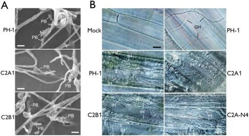 Assays for defects of the cdc2A and cdc2B mutant in plant infection and colonization.(A) Wheat glumes were inoculated with conidia of the wild type (PH-1) and cdc2A and cdc2B mutants (C2A1 and C2B1) and examined by SEM 24 h post-inoculation (hpi). PB, penetration branches. Bar = 10 μm. (B) Infectious hyphae (IH) formed by PH-1, C2A1, C2B1, and the complemented cdc2A/CDC2A-GFP transformant (C2A-N4) inside wheat coleoptile cells at 72 hpi. For comparison, the healthy plant sample inoculated with water (Mock) is shown. The epiphytic Germ tube and Hyphae (GH) is indicated. Bar = 10 μm.