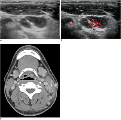 37-year-old man diagnosed with Kikuchi disease.A, B. Elongated cervical lymph node shows internal echogenic hilum (asterisk) and no definite necrotic component on gray-scale ultrasonography (A) and normal hilar vascular pattern on power Doppler ultrasonography (B).C. Axial computed tomography scan shows definite necrosis at same lymph node (arrow).