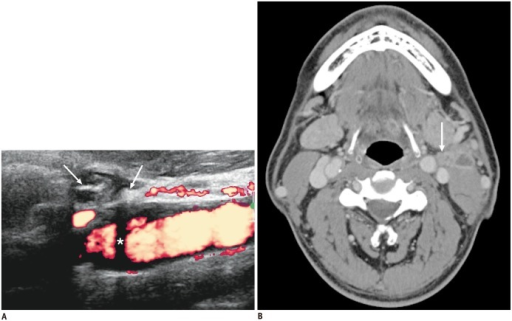 59-year-old man with tuberculous lymphadenitis.A. Small cervical lymph node shows internal hyperechoic lesions (arrows) with some posterior acoustic shadowing (asterisk) interpreted as calcification. B. No calcification was detected on computed tomography scan of same lymph nodes (arrow).