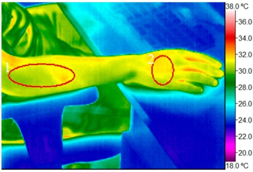 Digital infrared image of the right hand with regions of interest marked (1) proximal half of lateral surface of the right forearm (projection site of wrist extensor muscles); (2) dorsal surface of the right wrist.