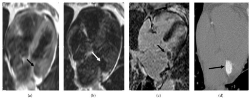 T1-weighted (a) and T2-weighted (b) turbo spin echo images show hypointense round mass-like lesion (black and white arrows). Delayed postcontrast cardiac MRI image (c) shows peripheral enhancement (black arrow). Multislice noncontrast computed tomography image (d) shows round calcification (black arrow) located in mitral annulus.