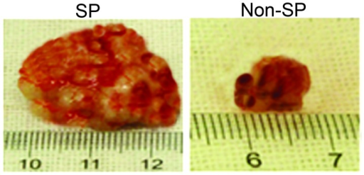 Tumorigenic potential of osteosarcoma SP cells. Gross tumor images of the tumors derived after 27 days of subcutaneously injected SP and non-SP cells into NOD/SCID mice.