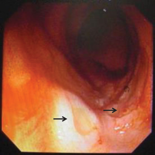 Multiple, shallow, oozing ulcers at the terminal ileum (arrows) detected by colonoscopy on day 4 of hospitalization for case-patient 1, who had a disseminated infection with Talaromyces marneffei.