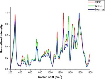 The normalized mean Raman spectra of OSCC, MEC and normal serum samples