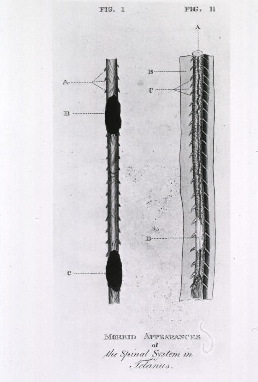 <p>Two figures showing morbid appearances of the spinal system in tetanus.</p>