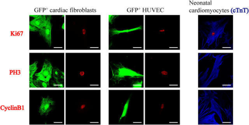Localization of Ki67, PH3, and cyclinB1 in cFB, HUVEC, and neonatal cardiomyocytes. GFP+ cFB, GFP+ HUVEC, and neonatal rat cardiomyocytes were stained with mouse monoclonal anti-Ki67 (top row, red), rabbit polyclonal anti-PH3 (middle row, red), and mouse monoclonal anti-cyclinB1 (bottom row, red). Cardiomyocytes were identified with anti-cTnT antibodies (blue). HUVEC and cFB expressed Ki67, PH3, and cyclinB1. Some of neonatal cardiomyocytes expressed Ki67, but not PH3 or cyclinB1. Bars, 50 μm.