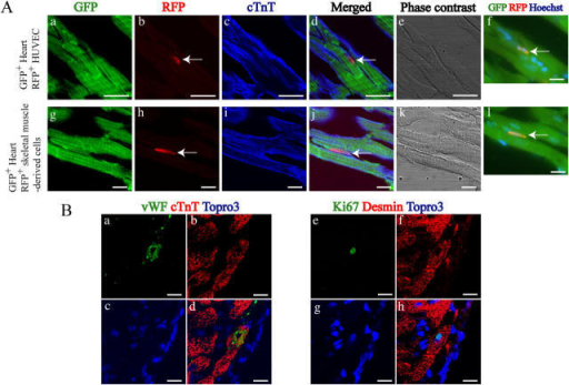 Adult cardiomyocytes fused with somatic cells in vivo. (A) RFP+ HUVEC or RFP+ skeletal muscle–derived cells were injected to the heart of GFP transgenic rats, and 6-μm sections were stained with rabbit polyclonal anti-RFP and mouse monoclonal anti-cTnT antibodies. Confocal microscopic images demonstrate that GFP+ cardiomyocytes (a and g, green) coexpress RFP, marker proteins of HUVEC (b, red) and skeletal muscle–derived cells (h, red), and cTnT (c and i, blue). d and j represent merged images; e and k represent phase-contrast images. The merged images of the same view were taken by fluorescent microscope (f and l). Nuclei were stained with Hoechst 33258 (f and l, blue). Arrows indicate the fused cells. Bars, 100 μm. (B) Two adjacent sections of 6 μm were cut from cryoinjured adult rat hearts. One section (a–d) was triple stained with mouse monoclonal anti-cTnT (red), rabbit polyclonal anti-vWF (green) antibodies, and Topro3 (blue). Another section (e–h) was triple stained with rabbit polyclonal anti-desmin (red), mouse monoclonal anti-Ki67 (green) antibodies, and Topro3 (blue). Confocal microscopic images in the border zone of cryoinjured hearts show a cell expressing vWF (a) and cTnT (b) with nucleus stained by Topro3 (c). Right panel shows a same fine-striated cell that expresses desmin (f) and Ki67 (e) with nucleus stained by Topro3 (g). d and h represent merged images. Bars, 100 μm.