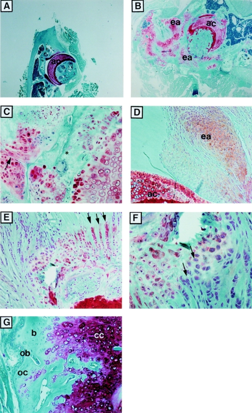 Cartilage cell proliferation in articular cartilage and in extraarticular connective tissue in NFATp−/− mice. (A and B) Low power (original magnification: ×20) of the femoral heads and acetabula of 12-mo-old control +/− (A) and NFATp−/− mutant (B) mice, showing thickening of articular cartilage and sites of extraarticular cartilage cell proliferation and joint destruction in the mutant animal. (C) High power (original magnification: ×200) of B, showing invasion of the acetabulum by proliferating cartilage cells (black arrows) and obliteration of the joint space (white arrows) with loss of safranin-O staining (*). (D) Femoral head and extraarticular connective tissues of 3-mo-old NFATp−/− mouse (original magnification: ×100), clearly demonstrating the physical separation of the sites of articular and extraarticular cartilage proliferation. (E) Extraarticular connective tissues of 3-mo-old NFATp−/− mouse demonstrating the differentiation of resident cells into ordered columnar cartilage (arrows). (F) High power (original magnification: ×200) of E. (G) Extraarticular connective tissues of 6-mo-old NFATp−/− mouse showing calcification of cartilage and the beginnings of endochondral ossification in the extraarticular soft tissue (original magnification: ×200). ac, articular cartilage; fh, femoral head; a, acetabulum; ea, extraarticular; ob, osteoblasts; oc, osteocytes; cc, calcified cartilage; b, bone.