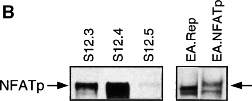 Absence of NFATp enhances, whereas overexpression of NFATp represses the cartilage phenotype. (A) RT-PCR analysis of mature cartilage gene expression in primary wt and NFATp−/− articular chondrocytes using types II and X collagen and HPRT primers. (B) Western blot analysis of S12 and EA control (Rep) and NFATp transfectants with anti-NFATp antibody. (C) RT-PCR analysis of mature cartilage gene expression of S12 and EA control and NFATp transfectants using type II collagen, type X collagen, CDMP-1, and actin primers (references 36–38).