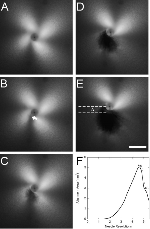 Winding and failure of collagen gels during in vitro acupuncture. (A) PLM image of the gel immediately before the onset of tearing. The characteristic '4-leaf clover' pattern of birefringence increases in size up to the point of failure as the gel becomes increasingly aligned due to winding around the needle. (B-E) Development of gel failure at 0.5 sec (0.15 rev) intervals. At the onset of tearing (B), a weakening of the birefringence can be observed near the needle where the dense, circumferentially wound center transitions to radially aligned fibers (arrow). As failure ensues, a hole is observed in the gel (C-E), and the residual stress in the remainder of the gel is enough to bend the needle, as indicated by the shift in needle position, Δ, directed away from the tear. The increasing size of the tear results in a decreasing area of birefringence. (F) Images A-E marked on a plot of the area above a threshold intensity vs. needle revolutions. The peak represents the image taken at maximum alignment immediately prior to the onset of failure. Bar: 1 mm.